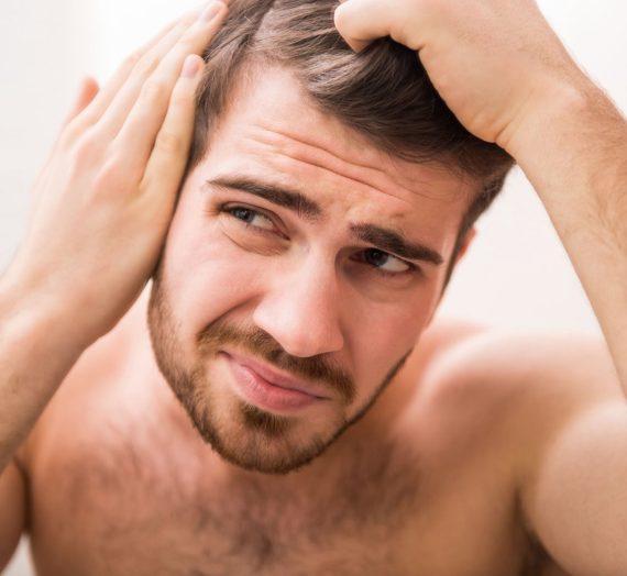 Príčiny straty vlasov umužov: Hlavný vinníci